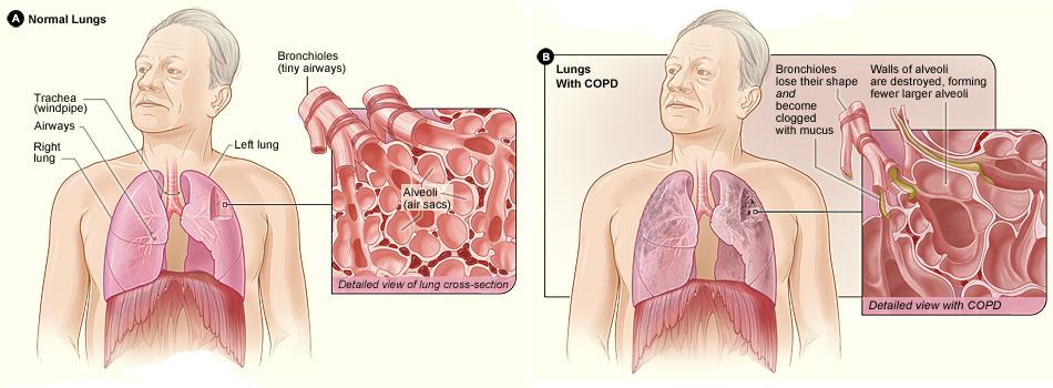 Why don't people with COPD get all the treatment they need?