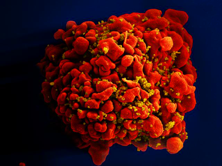 Produced by the National Institute of Allergy and Infectious Diseases (NIAID), this digitally colorized scanning electron microscopic (SEM) image depicts a single, red colored H9-T cell that had been infected by numerous, spheroid shaped, mustard colored human immunodeficiency virus (HIV) particles, which can be seen attached to the cell's surface membrane.